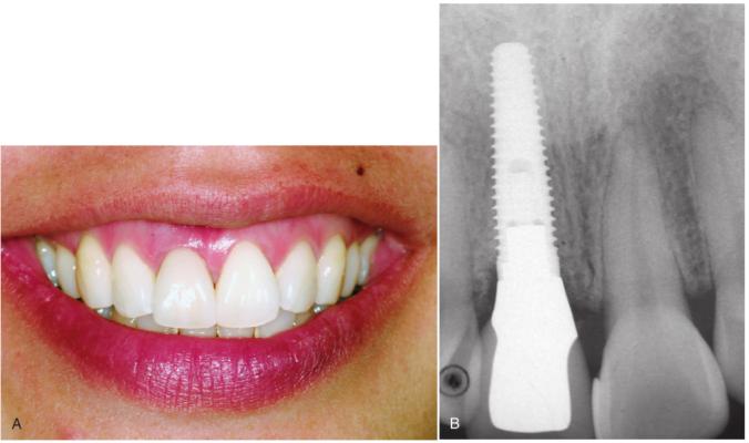 Cấy ghép implant cho bệnh nhân mất 1 răng đơn lẻ