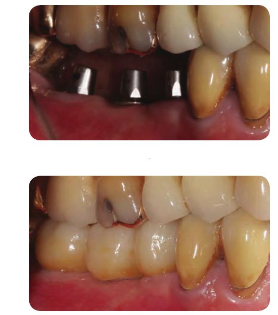 Cấy ghép implant cho bệnh nhân mấy 3 răng liền kề