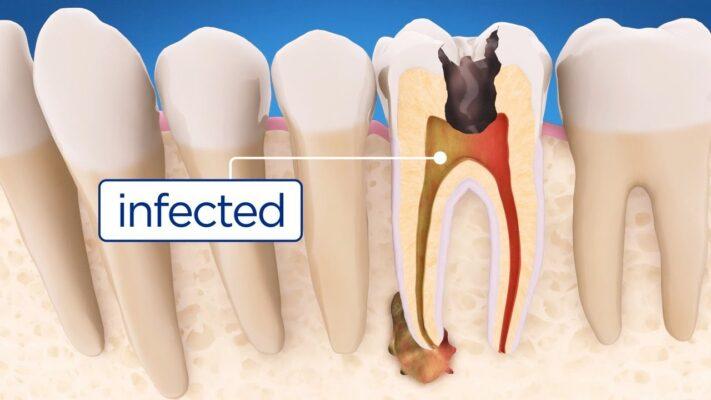 Hình. Răng bị nhiễm trùng tuỷ do sâu răng.