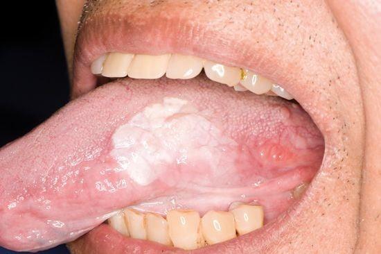 Mảng trắng ở bờ lưỡi – dấu hiệu của ung thư hốc miệng