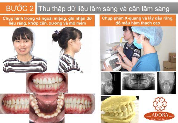 quy trình niềng răng 3