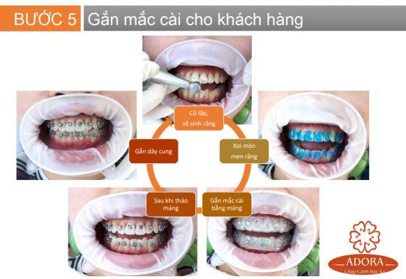 quy trình niềng răng 6