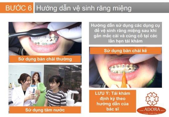 quy trình niềng răng 7