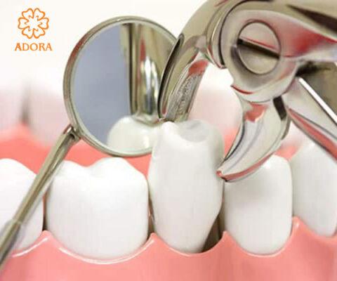 nhổ răng chỉnh nha