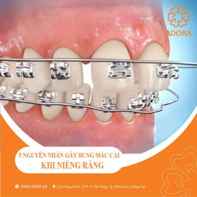 5 nguyên nhân gây bung mắc cài khi niềng răng