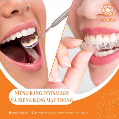 niềng răng invisalign và niềng răng mặt trong loại nào tốt hơn