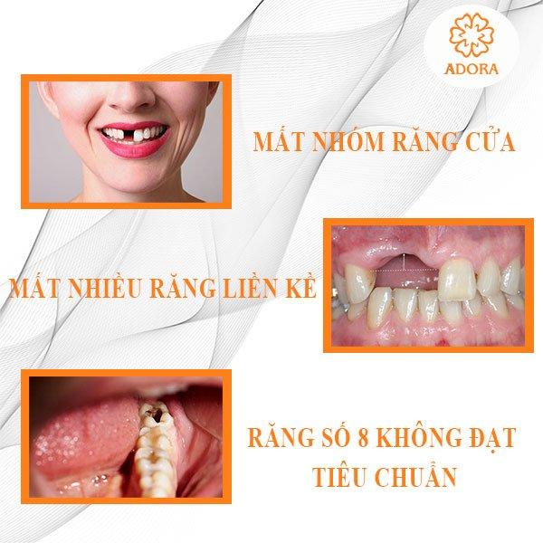 những trường hợp mất răng không niềng răng được