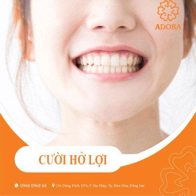 niềng răng có chữa cười hở lợi được không?